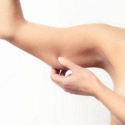 Hút mỡ cánh tay