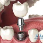 Cấy ghép implant – những thông tin mà bạn nên biết